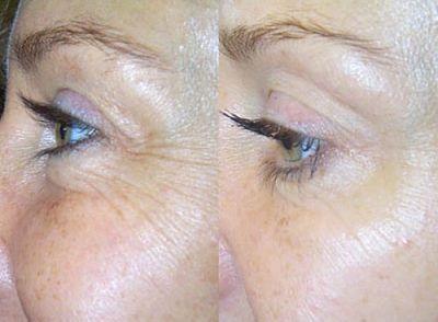 Derma Facial Care Gesichtspflege – Bild 4