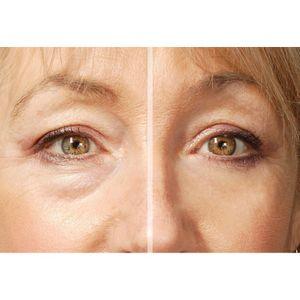 Rox Flawless Eyes Augencreme gegen Augenfalten, Tränensäcken, Augenringe – Bild 3