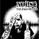 Noise ( Noi!se ) - the scars we hide - CD