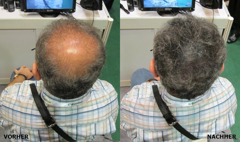 22g Schütthaar Streuhaare Hairpower Haarverdichtung Haarfasern Haarpulver – Bild 5