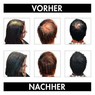 Hair Effect Dark Brown 3-4  26 g – Bild 2