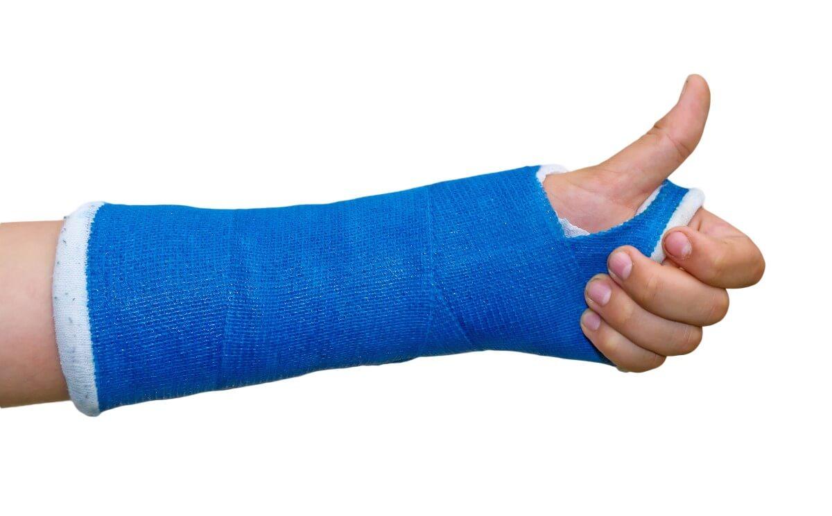 Eine blaue Gipsbinde am Arm. Die Hand zeigt den Daumen hoch.