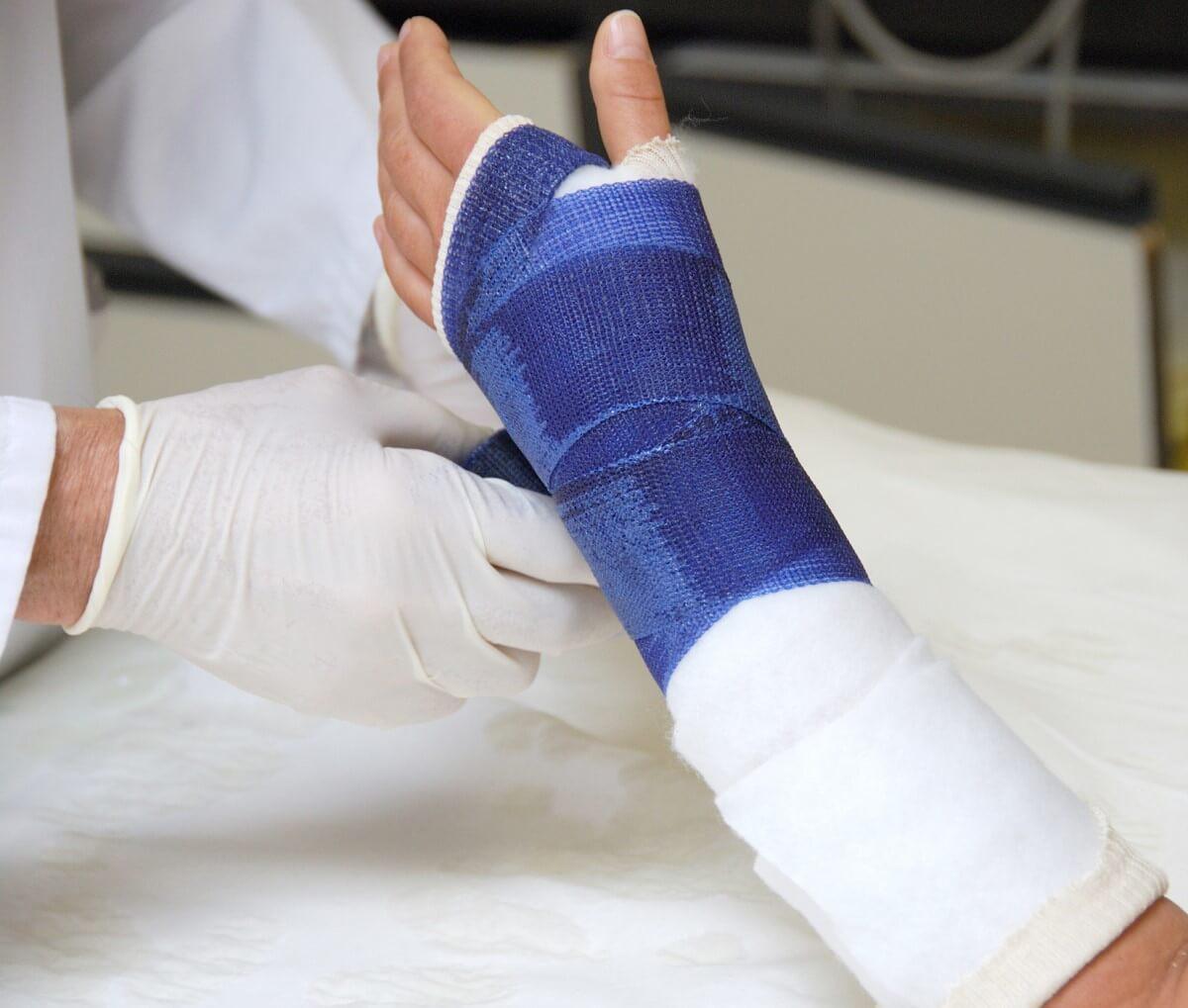 Arzt versorgt gebrochenen Arm mit Gipsverband aus dem Verbandsmaterial Sortiment