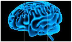 Herdabdeckplatte Menschliches Gehirn in leuchtend blauer Farbe – Bild 1