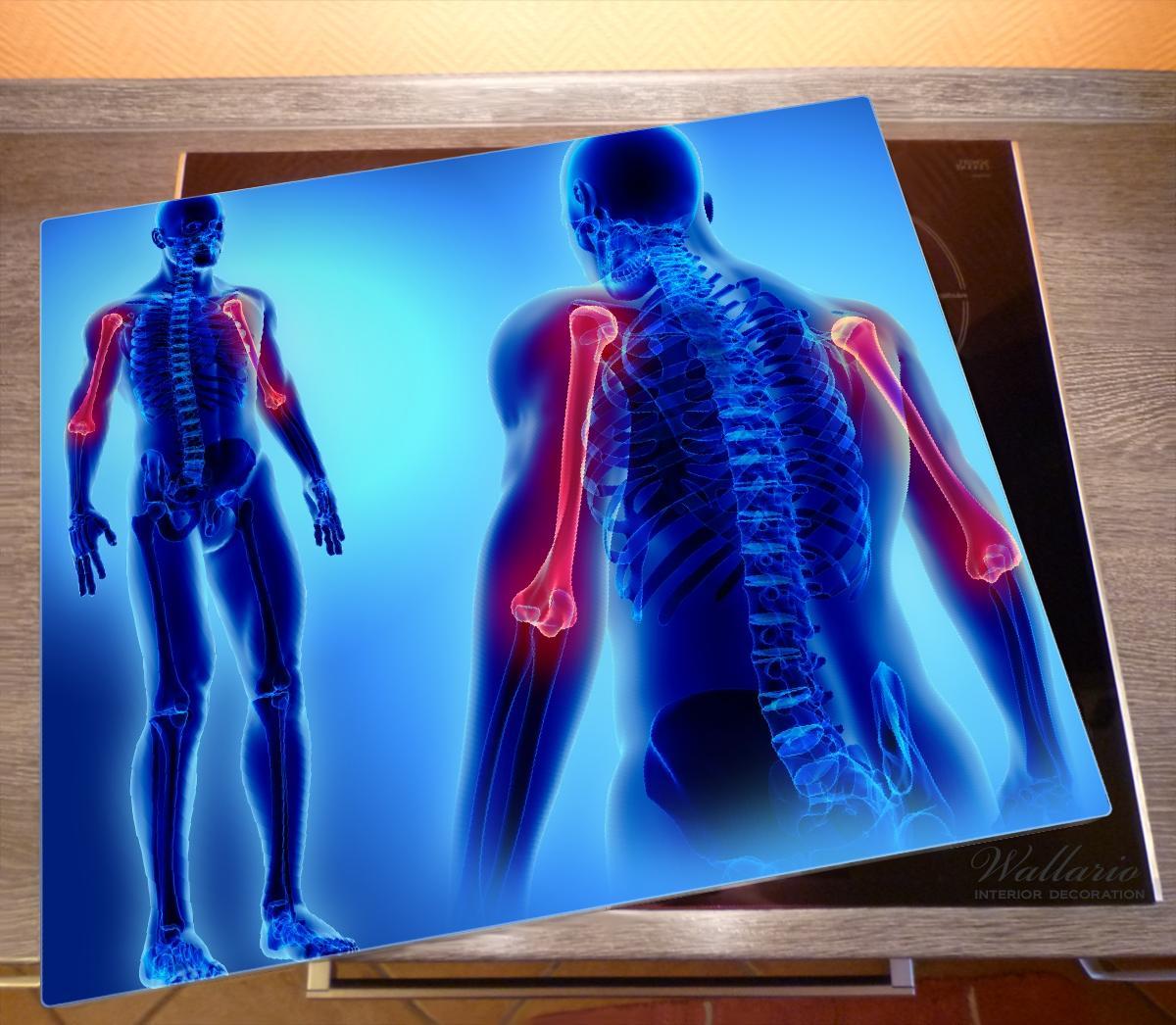 Herdabdeckplatte Anatomie Mensch – Oberarmknochen – Bild 2