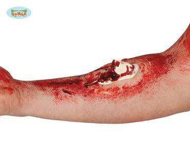 Wunde mit freiliegendem gebrochenem Knochen zum Aufkleben